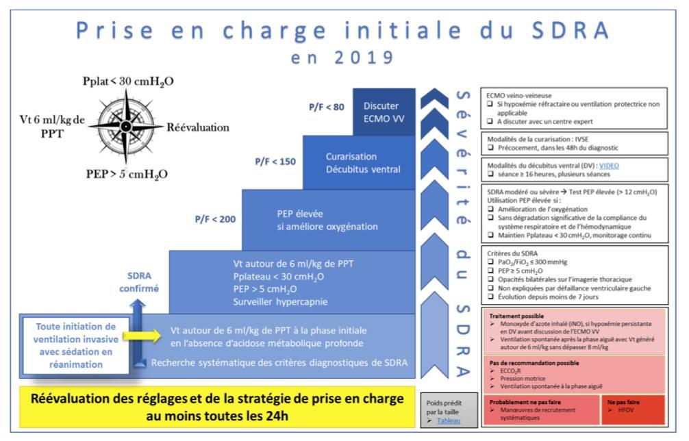 Recommandations françaises de l'ARDS – SRDA